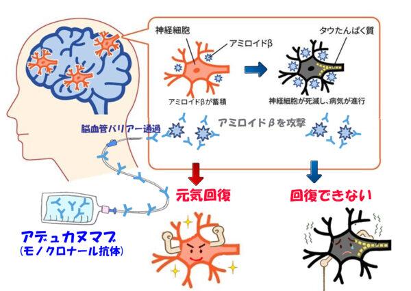 モノクロナール抗体